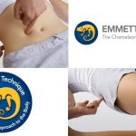 Emmett treatment-images-7-1024x558